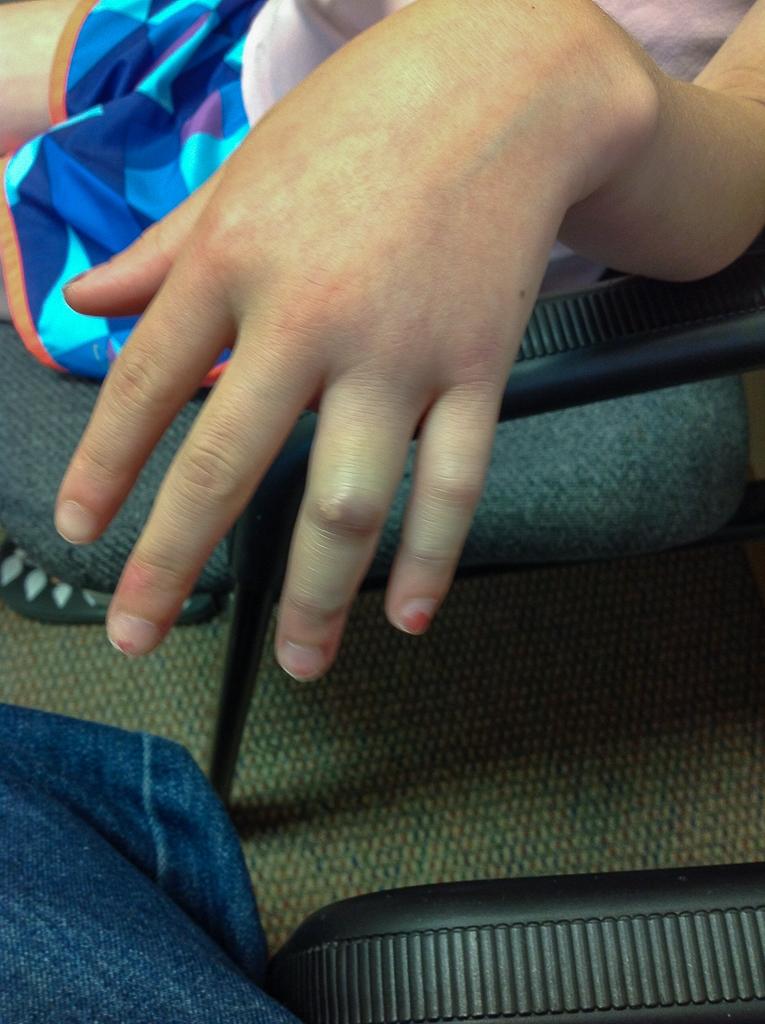 Katherine's Broken RIng Finger Before Cast